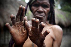 La amputación de los dedos. Primera parte