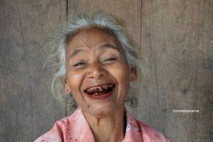 Los dientes ennegrecidos II