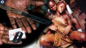 La mutilación genital femenina. Primera Parte